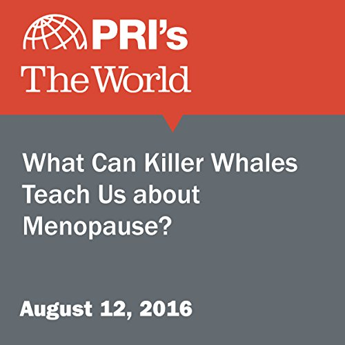 What Can Killer Whales Teach Us about Menopause? audiobook cover art