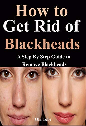How to Get Rid of Blackheads : A Step By Step Guide to Remove Blackheads (English Edition)