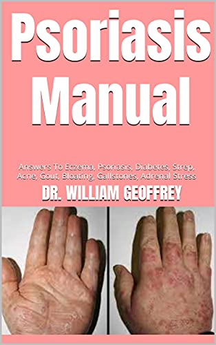 Psoriasis Manual : Answers To Eczema, Psoriasis, Diabetes, Strep, Acne, Gout, Bloating, Gallstones, Adrenal Stress (English Edition)