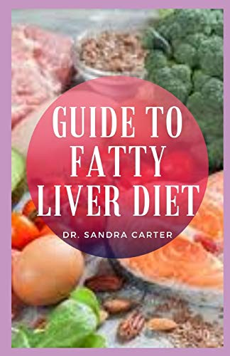 Guide to Fatty Liver Diet: Fatty liver disease could potentially lead to liver scarring, called cirrhosis, which can be life threatening and comes with a set of very unpleasant symptoms.