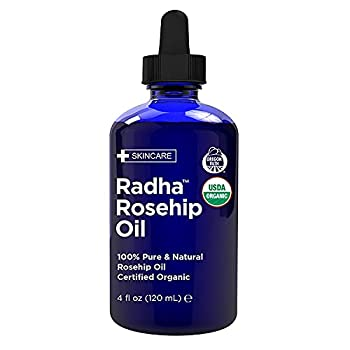 Radha Beauty USDA Certified Organic Rosehip Oil 100% Pure Cold Pressed - Great Carrier Oil for Moisturizing Face Hair Skin & Nails - 4 fl oz