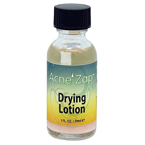 Acne Zap Drying Lotion, Spot Treatment, Dries Acne, Pimples & Blemishes - 1.0 fl oz.