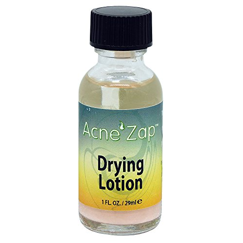 Ovante Acne Spot Treatment, Drying Lotion AcneZap, Dries Acne, Pimples & Blemishes with Sulfur, Salicylic Acid and Zinc Oxide - 1.0 fl oz.