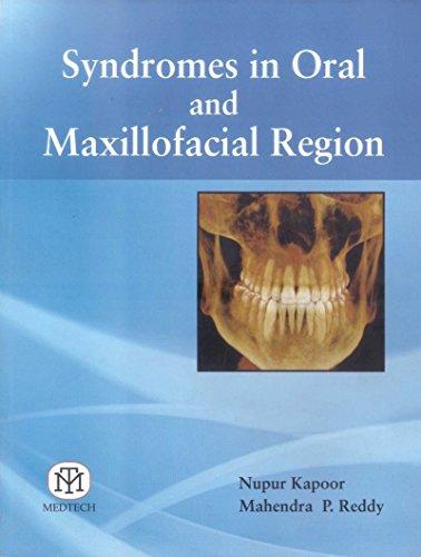 Syndromes in Oral and Maxillofacial Region