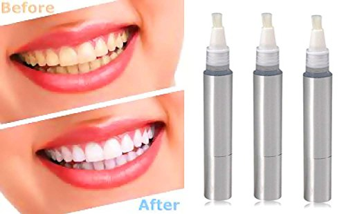 Teeth Whitening 3 Pack Teeth Whitening Pen Set is the BEST Tooth Whitening Kit (Professional) Contains 3 Large Pens