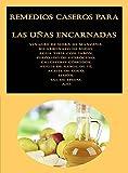Remedios caseros para las uñas encarnadas: Vinagre de sidra de manzana, Bicarbonato de sodio, Agua tibia con jabón, Peróxido de hidrógeno, Calcetines cómodos, Aceite de árbol de té, Aceite de coco