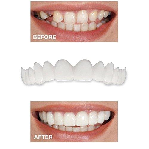 FORH 1PC/2PC Zahnersatz Tooth Comfort Fit Kosmetische Zähne Zahnprothese Veneer,Sicherer sofort Smile Kosmetik Neuheit teeth-one passt für die meisten Größen (Weiß 5 PCS)