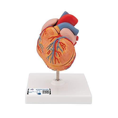 3B Scientific G04 Corazón Clásico Con Hipertrofia Ventricular Izquierda (Hvi), de 2 Piezas - 3B Smart Anatomy