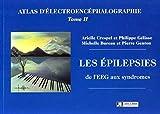 Atlas d'électroencéphalographie - Tome 2, Les épilepsies, de l'EEG aux syndromes