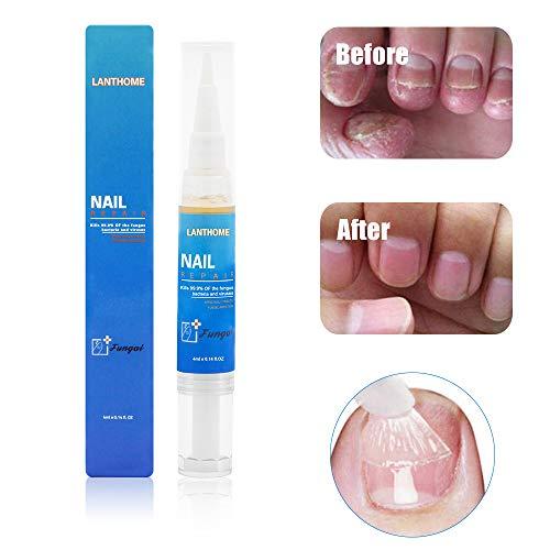 Nail Fungus Treatment, Fungus Stop, Anti fungal Nail Solution Reparationer & skyddar mot missfärgning, Fungal Nail Treatment, Återställer naglar missfärgade för tånaglar och naglar