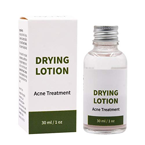 Drying Lotion, Acne Spot Treatment Facial Serum Dries Out Pimples, Cysts,...