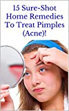 15 Sure-Shot Home Remedies To Treat Pimples (Acne)! (English Edition)