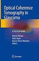 Optical Coherence Tomography in Glaucoma: A Practical Guide