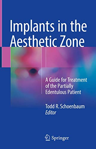 Implants in the Aesthetic Zone: A Guide for Treatment of the Partially Edentulous Patient