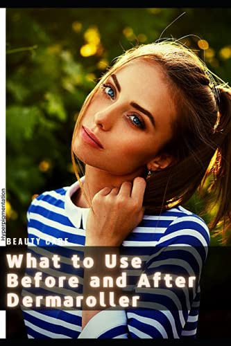 What tо Use Before аnd After Dermaroller: Hyperpigmentation