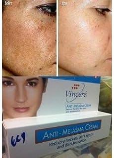 Vin 21 Anti-Melasma Reduces Dark & Brown Spots, Age Spots, Sun Spots, Pigmentation, Freckles 15 G./Variety Etc. x 2 Tubes