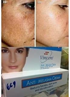 Vin 21 Anti-Melasma Reduces Dark & Brown Spots, Age Spots, Sun Spots, Pigmentation, Freckles 15 G./Variety Etc. x 2 Tubes