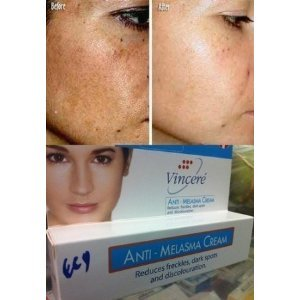 Best Cream Anti Melasma Reduces Dark & Brown Spots, Age Spots, Sun Spots, Pigmentation, Freckles 15 G. X 3 Tubes