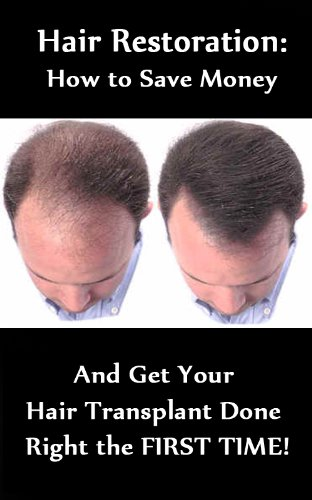 Hair Restoration - How to Save $1,000's and Get Your Hair Transplant Done...