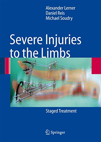Severe Injuries to the Limbs: Staged Treatment