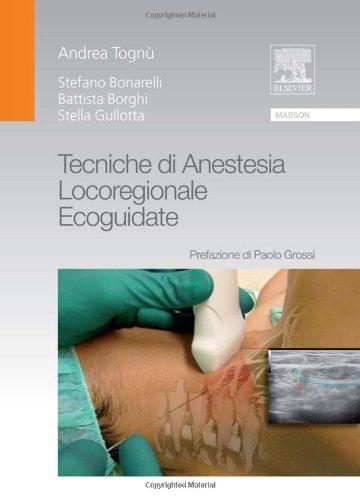 Tecniche di anestesia locoregionale ecoguidate