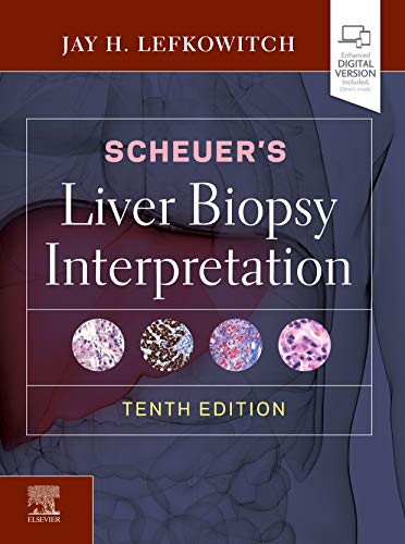 Compare Textbook Prices for Scheuer's Liver Biopsy Interpretation 10 Edition ISBN 9780702075841 by Lefkowitch MD, Jay H.