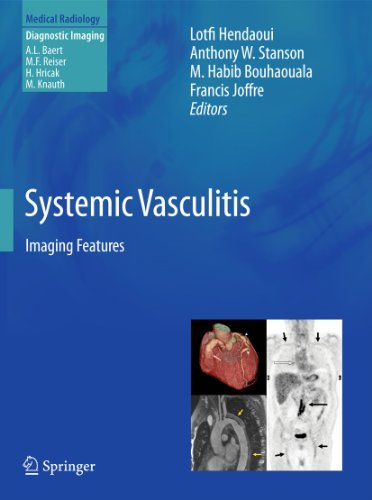 Systemic Vasculitis: Imaging Features (Medical Radiology)