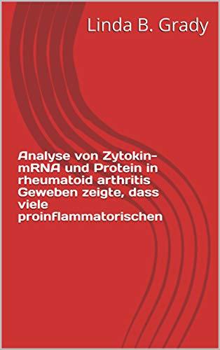 Analyse von Zytokin-mRNA und Protein in rheumatoid arthritis Geweben zeigte, dass viele proinflammatorischen