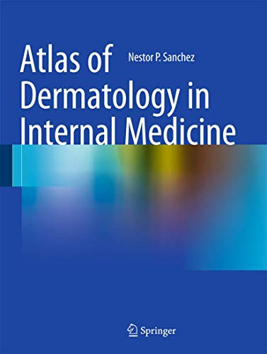 Atlas of Dermatology in Internal Medicine