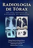 Radiologia de Tórax : um guia ao estudante de medicina (Portuguese Edition)