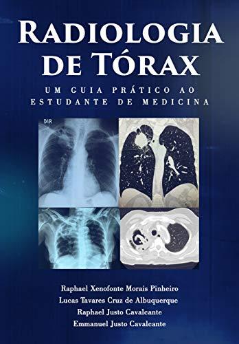 Radiologia de Tórax : um guia ao estudante de medicina