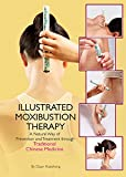 Illustrated Moxibustion Therapy: A Natural Way of Prevention and Treatment through Traditional Chinese Medicine