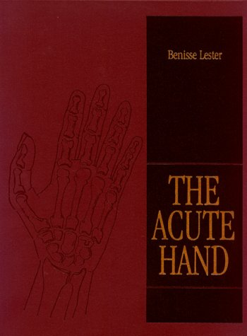 Acute Hand