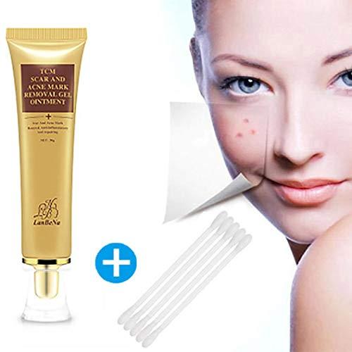 Suppression de cicatrice d'acné,Fulltime 30ml Crème de retrait de cicatrice d'acné Crème de visage de réparation de peau Crème de visage d'acné