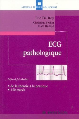 ECG pathologique: de la théorie à la pratique, 140 tracés