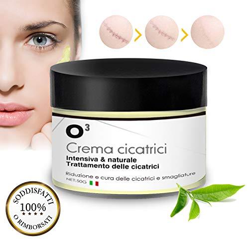 O³ Crema per Cicatrici-Scar Cream-Rimuovere Cicatrici Chirurgiche, Cicatrici Acne i Smagliature-100% naturale-Per Donne e Uomini