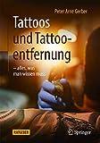 Tattoos und Tattooentfernung: -alles, was man wissen muss