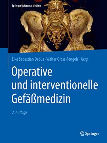 Operative und interventionelle Gefäßmedizin (Springer Reference Medizin)