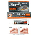 Unknown Athletes Foot Treatments - Best Reviews Guide