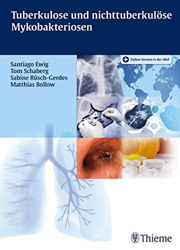 Tuberkulose und nicht tuberkulöse Mykobakteriosen