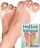 6x Tutore Alluce Valgo Correttore Trasparente YogaMedic® - Separatore Dita Piede - Supporti per i piedi - Raddrizza dita silicone, dita a martello
