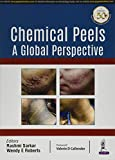 Chemical Peels Review and Comparison