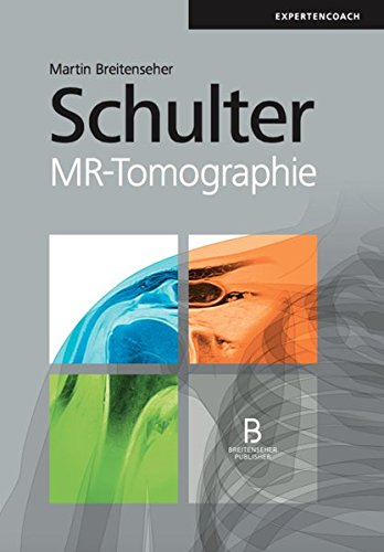 Schulter: MR-Tomographie