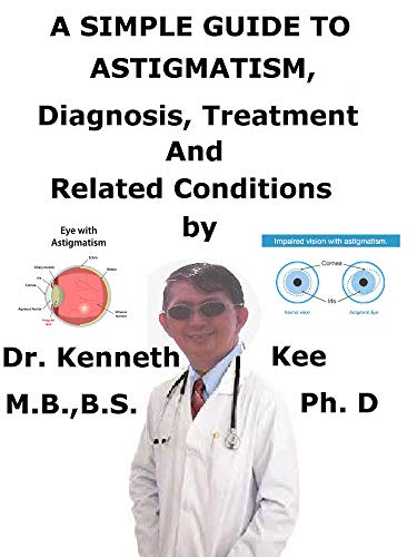 A Simple Guide To Astigmatism, Diagnosis, Treatment And Related Conditions (English Edition)