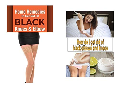 How do I get rid of black elbows and knees : Ultimate Guide for women (English Edition)