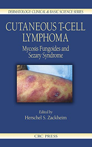 Cutaneous T-Cell Lymphoma: Mycosis Fungoides and Sezary Syndrome (Dermatology: Clinical & Basic Scie