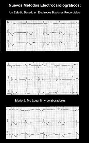 Nuevos Métodos Electrocardiográficos: Un Estudio Basado en Electrodos Bipolares Precordiales