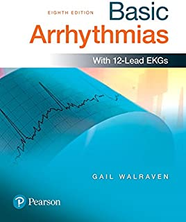 Best basic arrhythmias gail walraven Reviews