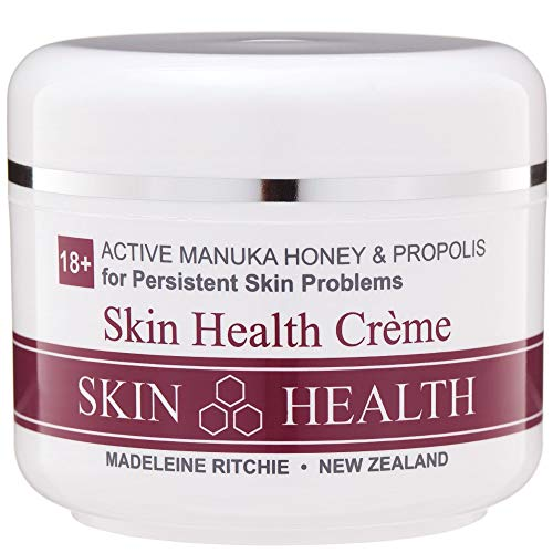 Madeleine Ritchie New Zealand 18+ Active Manuka Honey & Propolis Skin Health Creme for healing of persistent skin problems 100ml. Excellent for Eczema, Psoriasis, Dermatitis, Acne and Dry Skin.
