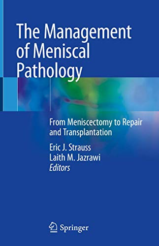 The Management of Meniscal Pathology: From Meniscectomy to Repair and Transplantation